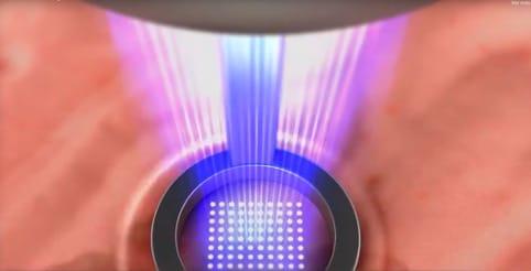 laser co2 fraccional