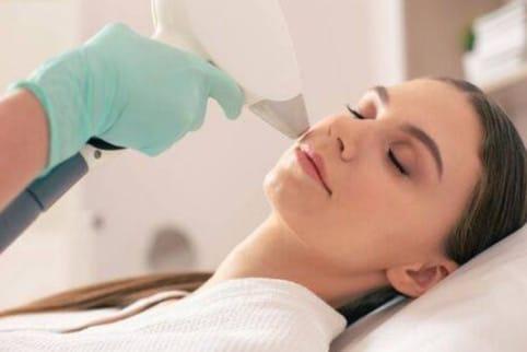 tratamiento de radiofrecuencia facial barcelona