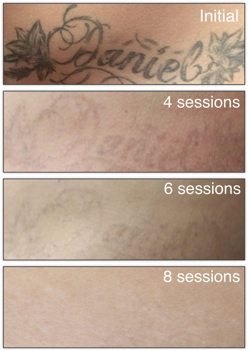 laser para eliminar tatuajes sesiones