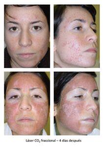 Acne y cicatrices 2