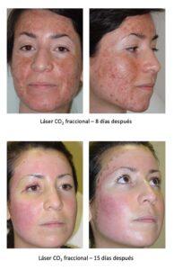 Acne y cicatrices 3