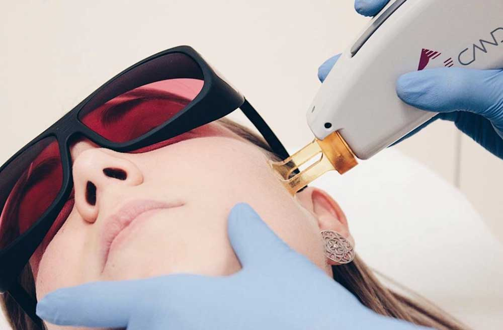 Depilacion Facial Fotomedicina