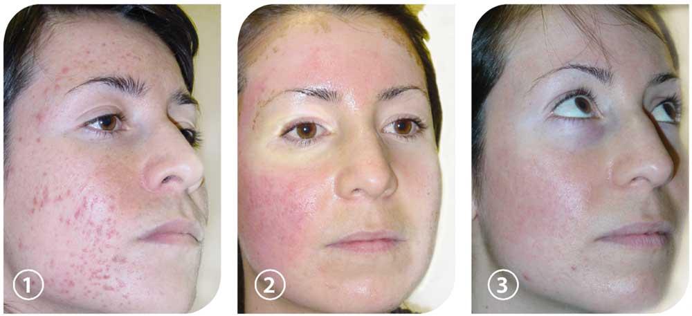 acne tratamiento laser