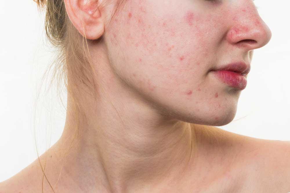 cara mujer con acne