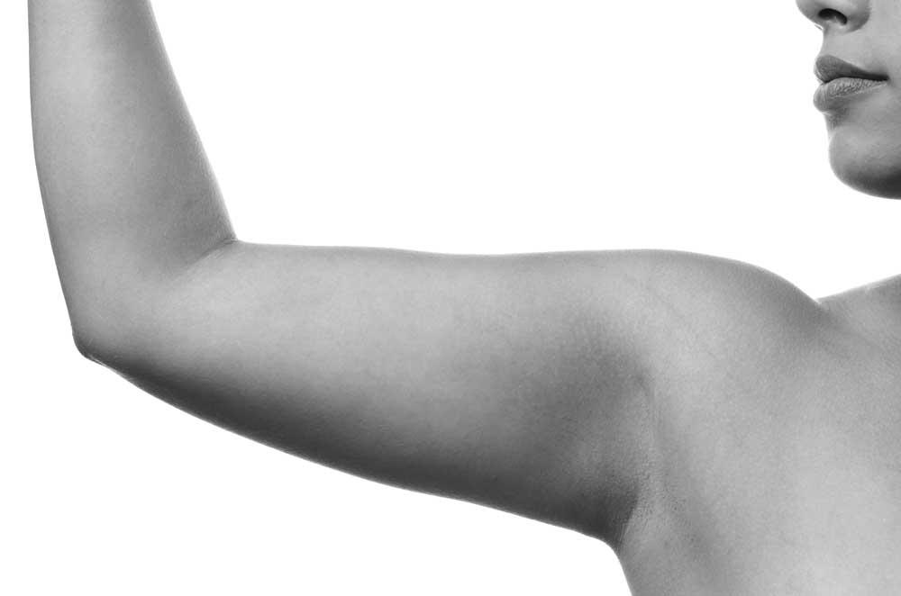 radiofrecuencia flacidez corporal