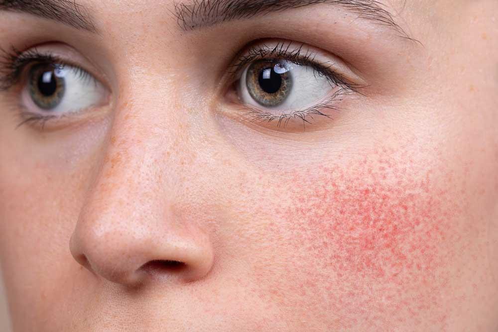 tratamiento laser rosacea