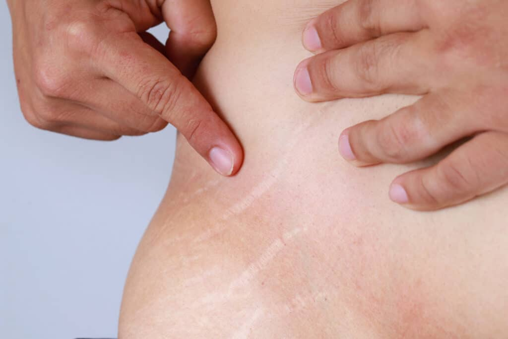 Men belly fat with stretch marks