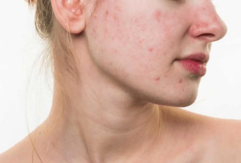 dermatologia laser acne