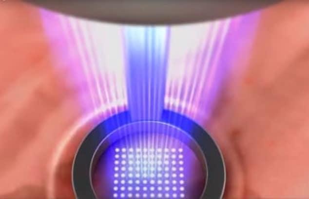 laser en dermatologia papulas
